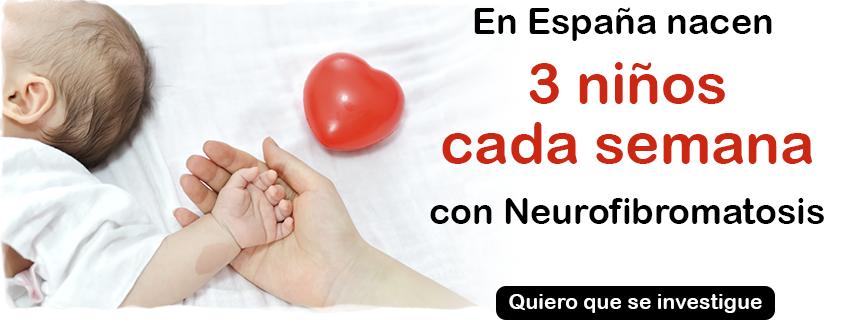 En España nacen 3 niños cada semana con neurofibromatosis